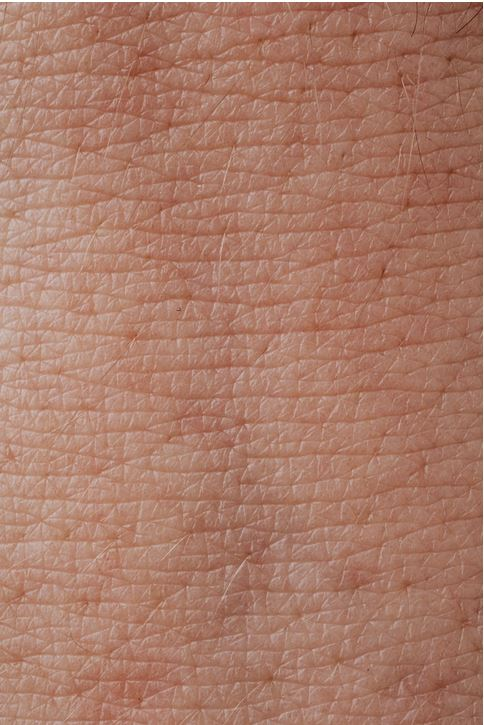 How to Treat Atopic Dermatitis With the Help of Your Doctor